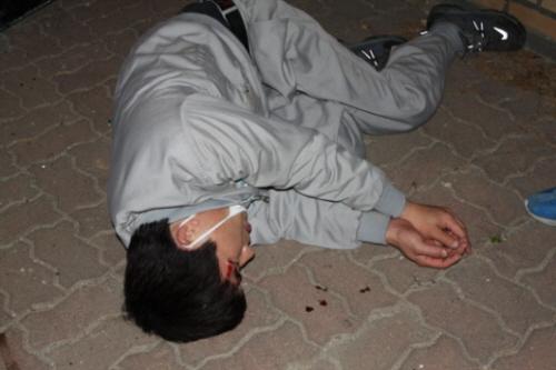 ▲ 2011년 5월 19일 새벽 유성기업이 고용한 용역 직원이 몰던 대포차량에 치인 유성기업 노동조합 조합원이 쓰러져 있다. ⓒ금속노조 유성기업지회